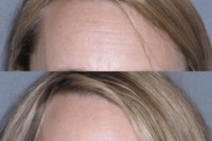 Botox treatment of forehead lines - preserving eyebrow motion is important for expression