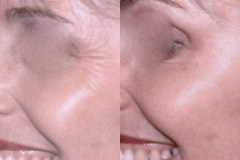 Botox treatment of crow's feet - notice the natural smile and expression