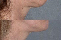 Chin implant surgery to improve projection and facial balance