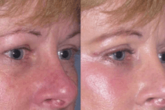Upper and lower Eyelid lift  (Blepharoplasty) 1 week after minimal swelling or brusing