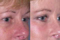 Upper and lower Eyelid lift  (Blepharoplasty) 2 weeks after minimal swelling or brusing