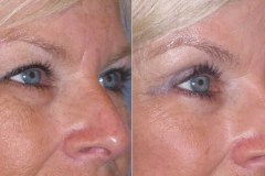 Upper and lower eyelid lift to open the eyes and reduce the puffiness