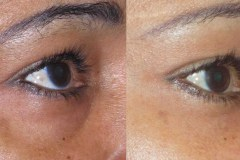 Facial fat transfer to lower eyelids. Eyes look less tired, more open.