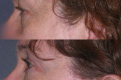 Facial fat transfer to lower eyelids, with upper eyelid lift. Eyes look less tired, more open.
