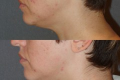 Fractora to the face for acne.