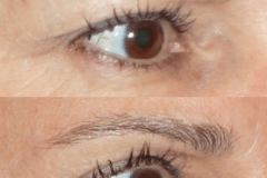 Fractora  to the Upper and Lower Eyelids