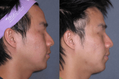 Fraxel dual restore laser skin series for acne scarring