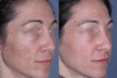 Fraxel dual restore laser skin series for acne scarring.
