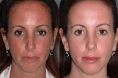 Fraxel dual restore laser skin series for sun damage/pigmentation.
