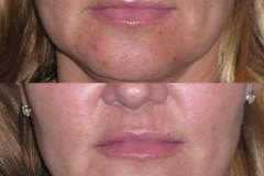 Fraxel restore laser skin series for acne scarring.