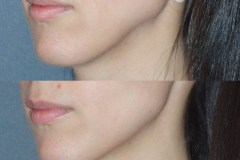 Juvederm treatment of left jawline depression.