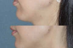 Juvederm treatment of side jawline depression.