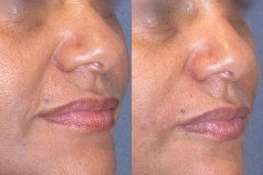 Juvederm laugh line treatment, immediately after treatment with cannula. Notice no bruising.