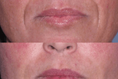 Juvederm laugh line treatment lines  are not over filled resulting in a  natural look