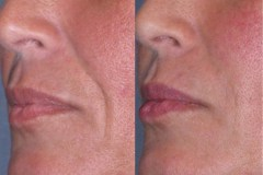 Juvederm laugh line treatment. Lines are not over filled, resulting in a natural result.