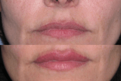 Juvederm upper lip correction by dissolving too much filler placed by other practitioner