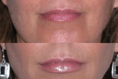 Juvederm lip treatment. Lips are shaped, not just filled, for a natural result.