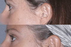 Juvederm tear trough сorrection