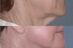 Lower face lift and neck lift