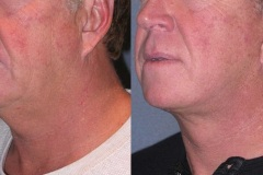 Lower face and neck lift- note elevation of jowls and tightening of neck