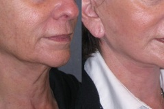 Lower face and neck lift- note elevation of jowls and smoothing of neck bands