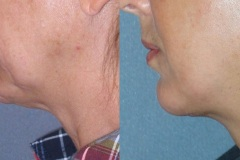 Lower face and neck lift, chin implant- note elevation of jowls and tightening of neck