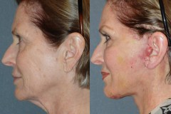 1 Week After Lower Face Neck Lift. Normal Swelling and Bruising