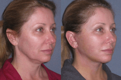 Mini lift with neck lift 1 week after to improve the jawline and neck