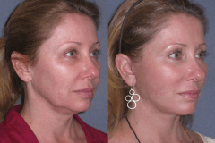Mini lift with neck lift 2 weeks after to improve the jawline and neck