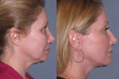 Mini lift with neck lift 6 months after to improve the jawline and neck