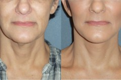 Mini lift with neck lift to improve the jawline and neck