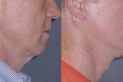Mini lift with neck lift and chin implant to improve the jawline and neck