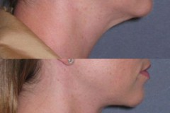 Neck lift note significant improvement in jawline and neck contour