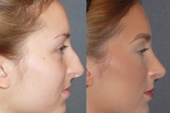 Rhinoplasty cosmetic nasal surgery with septoplasty, narrowing of nose, hump reduction, refinement, deprojection and rotation of the tip.