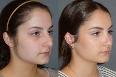 Rhinoplasty (Cosmetic Nasal Surgery) with slight tip refinement and hump reduction. Natural looking result.