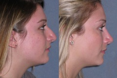 """Rhinoplasty (cosmetic nasal surgery) note the natural looking result that does not look """"plastic"""""""