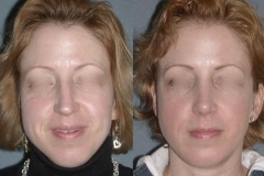 "Rhinoplasty (cosmetic nasal surgery) note the natural looking result that does not look ""plastic"""