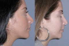 Revision rhinoplasty note the improvement in the tip