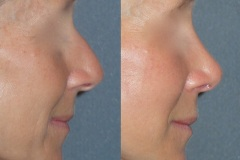 Rhinoplasty (cosmetic nasal surgery) with tip refinement, no rotation, columella correction, hump reduction. Natural looking result