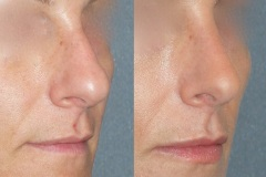 Rhinoplasty (cosmetic nasal surgery) with tip refinement, no rotation, straightening of bridge, slight hump reduction. Natural looking result