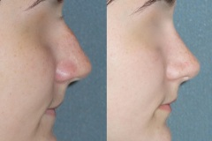 Rhinoplasty (cosmetic nasal surgery) with tip refinement, no rotation, narrowing of nose, slight hump reduction. Natural looking result