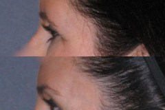 Temporal brow lift that only lifts the outer eyebrow to avoid the surprised look