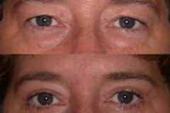 Upper and lower eyelid lift blepharoplasty 1 week after minimal swelling or bruising