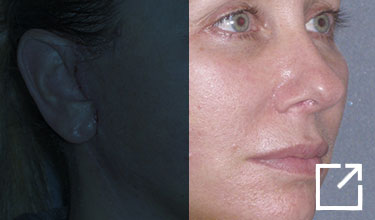 Mini Lift & Neck Lift - 1 Week Before and After Picture