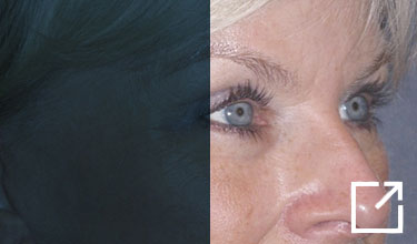 Eyelid Lift- Upper Before and After Picture