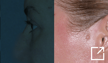 Juvéderm Tears Troughs Before and After Picture