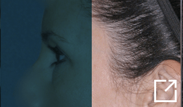 Temporal Brow Lift Before and After Picture