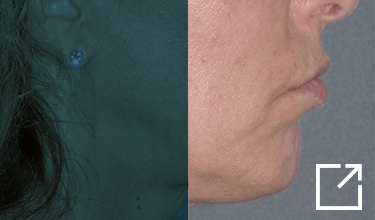 Chin Implant Before and After Picture