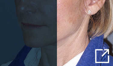 Mini Lift & Neck Lift Before and After Picture