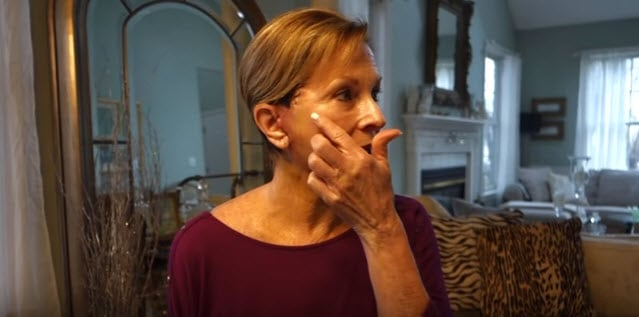 Facelift Before And After Boston Video